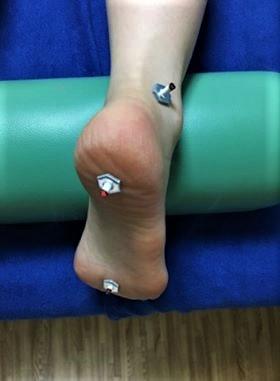 あじさい鍼灸マッサージ治療院 足のお灸の様子