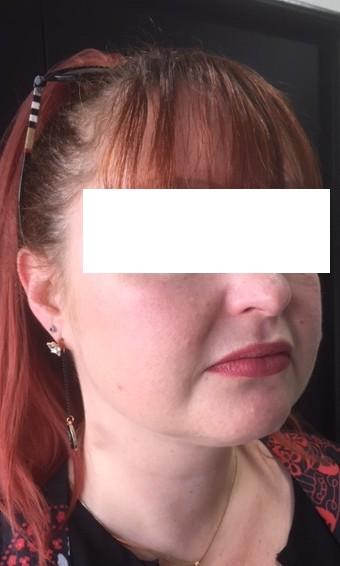 resultat après un an après liposuccion simple du menton