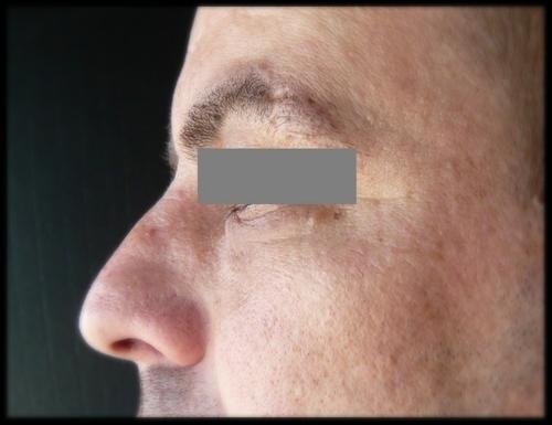 résultat après injection de 1,5 cc de graisse à 6 mois
