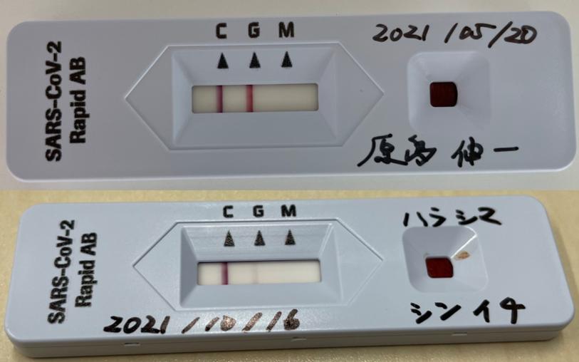 新型コロナワクチン接種後の抗体価の変化