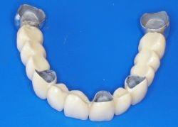 Eine Zahnbrücke