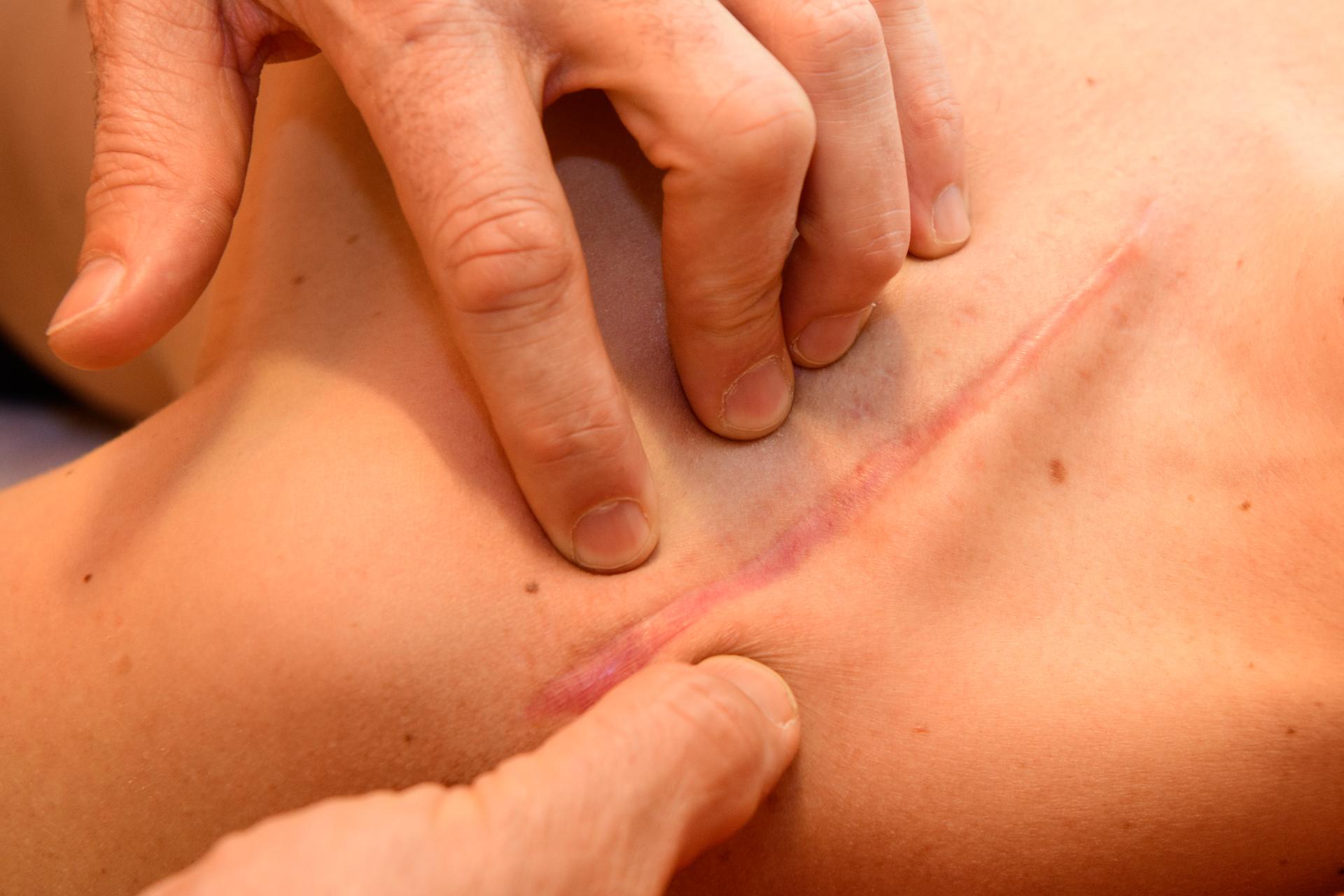 Narbentherapie nach Boeger