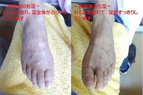 施術前の右足と、施術後の左足。