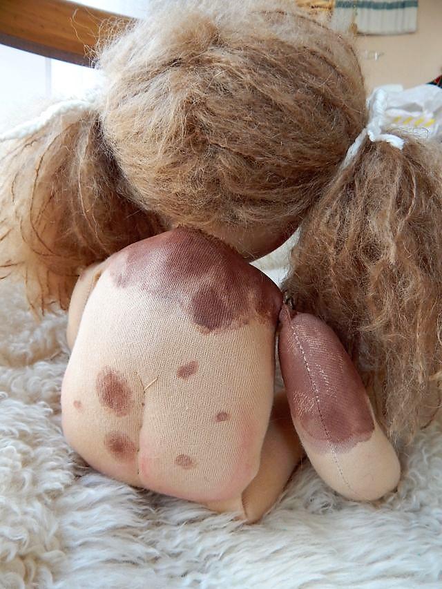 Bio-Stoffpuppe, Waldorfart, Wunschpuppe, individuelle Puppe passend zum Kind, ökologische Kinderpuppe, Nävuspuppe, Puppe mit Muttermalen, Puppe mit Riesenmuttermal, Puppe mit Leberflecken, handgemachte Puppe, Puppenfreundin, Wunschpuppe,