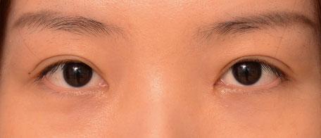 Patient with infold creation and medium fold height creation resulting in a natural appearing double eyelid surgery crease