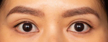 Patient with high folds placement and outfold double eyelid surgery crease. These results can look natural and distinct in those with a sunken or enotphalmic eye position