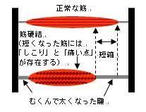 筋硬結模式図
