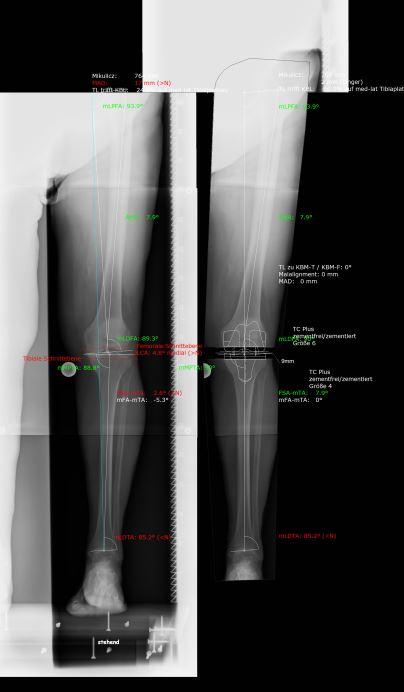 Knieprothese Planung Hüftdysplasie Hüftarthrose Coxarthrose Hipdysplasia Coxarthrose Hüftarthrose Hüftprothese Hüft-TEP Arthrose Kurzschaft Kniearthrose Knieprothese Minimalinvasiv Schlittenprothese Teilprothese knee hip prosthesis gelenkprothik Stock