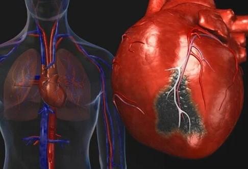 Clinical manifestation of Atherosclerosis
