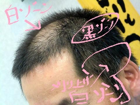 薄い 側 頭 部