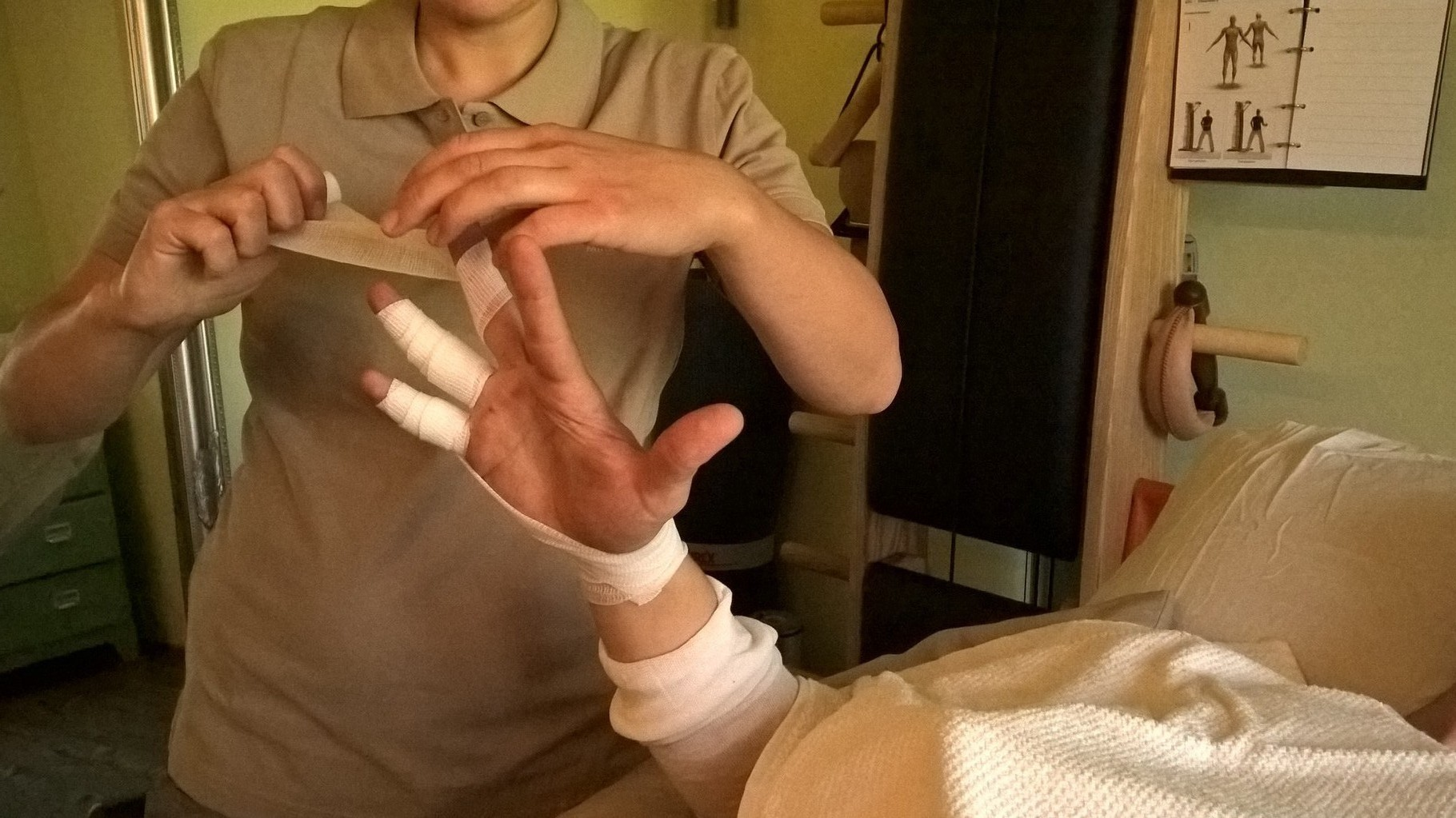 Lymphbandage Hand bei Lymphödem am Arm nach Brustamputation