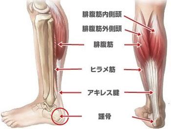 「アキレス腱炎」の画像検索結果