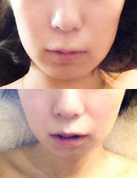 小顔かっさフェイシャル(上):before (下):after