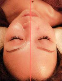 小顔かっさフェイシャル(左):before (右):after