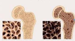 osso sano           e       osteoporosi