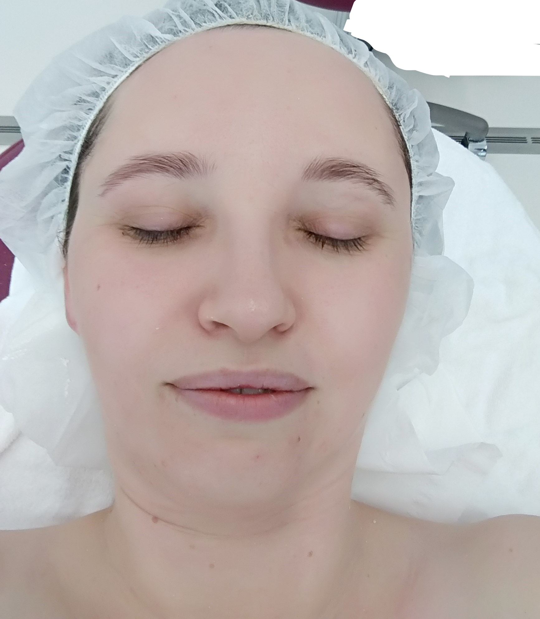 Nach der Behandlung