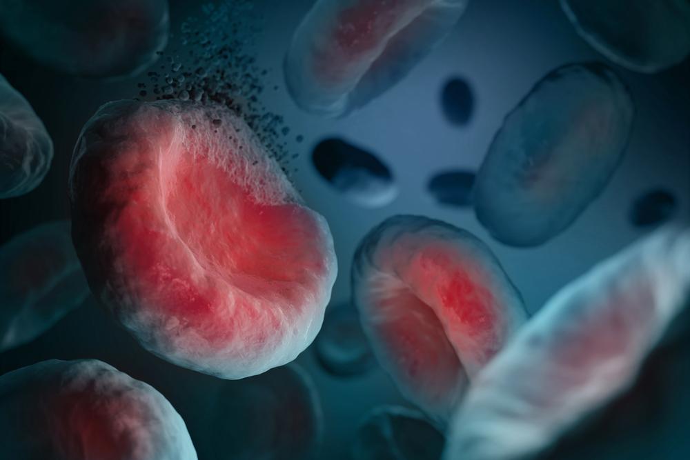 SYnAbs launches the generation of innovative monoclonal antibodies targeting hemoglobinopathia diseases