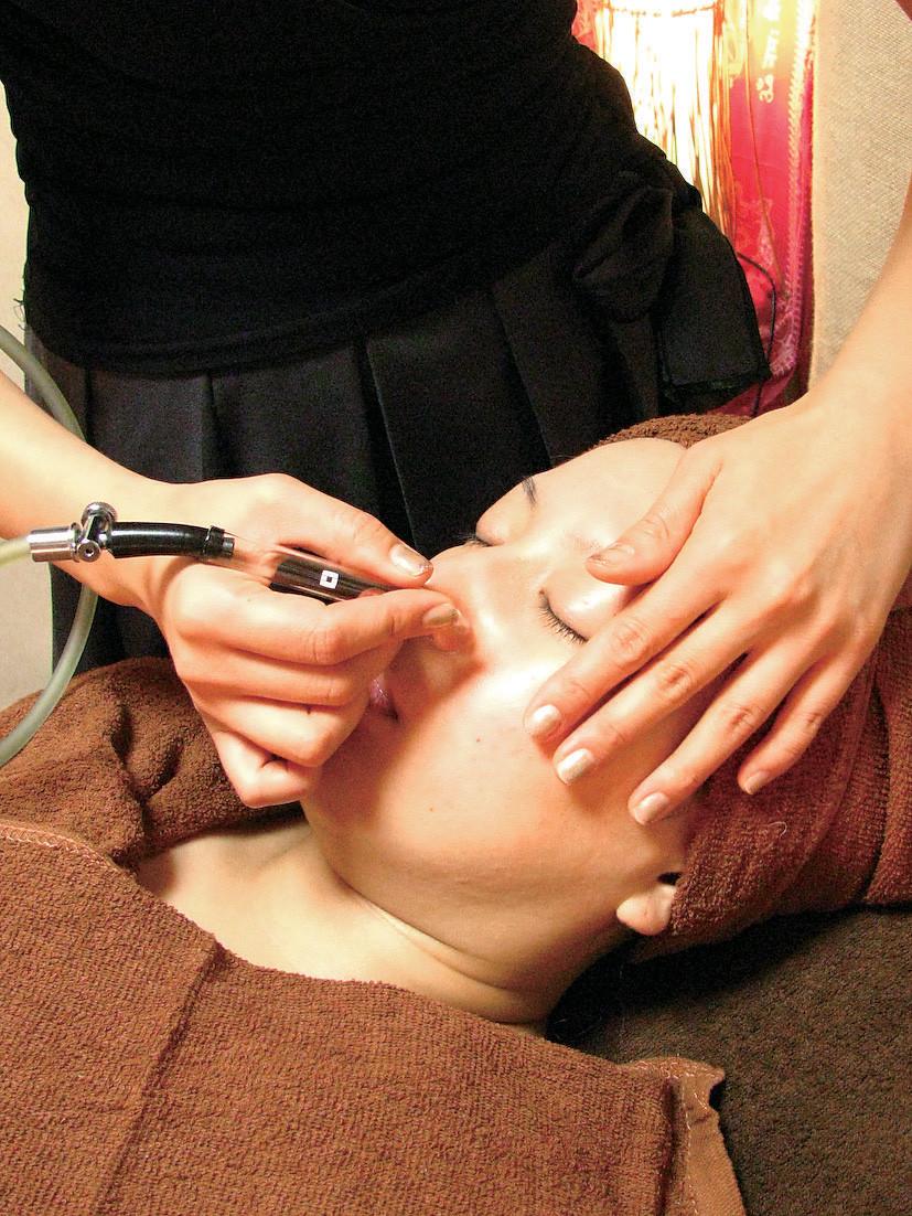クレンジングと吸引で、ニキビやニキビ跡、お肌の悩みを改善します。