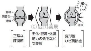 関節痛・関節炎のイメージイラスト(by新潟市の漢方薬専門店「西山薬局」)