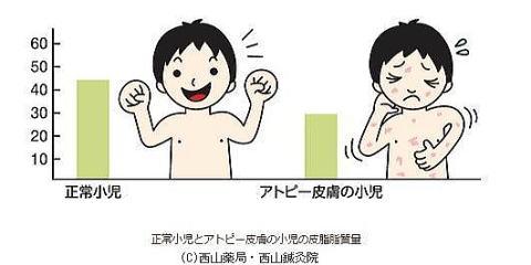 正常小児とアトピー皮膚の小児の皮脂肪質量(by新潟市の漢方薬専門店「西山薬局」)