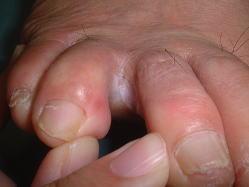 趾間型(ゆびの間の水虫)