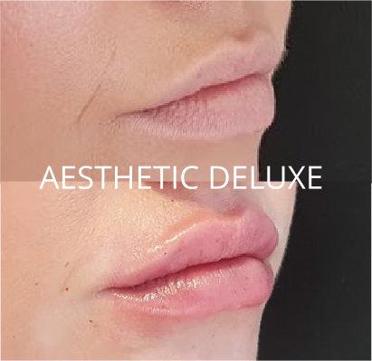 Lippen aufspritzen mit Hyaluron Filler vorher nachher