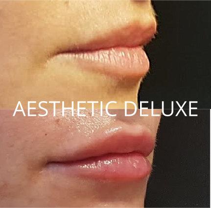 Lippen aufspritzen mit Hyaluron vorher nachher Bilder