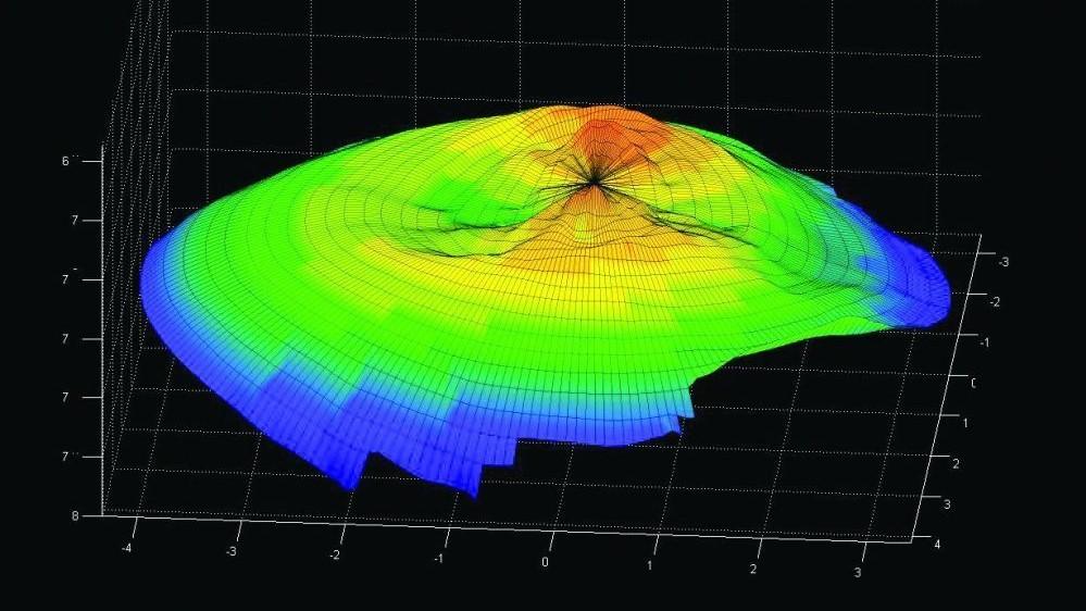 3D-Messung der Hornhaut