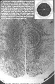 Ringartefakt, der von Hamer als ca-Phase-HH bezeichnet wird
