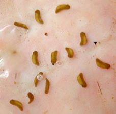 Auf dem Foto kann man mal versuchen, Blutegel und Embryo zu unterscheiden. Was ist abgebildet? (Ich habe es nicht eindeutig sagen können.)