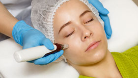 MICRONEEDLING / PHILINGS
