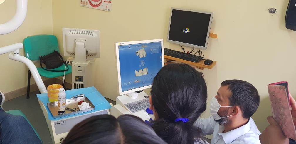 Der Computer erstellt ein Modell des präparierten Zahnes und des Gegenkiefers.