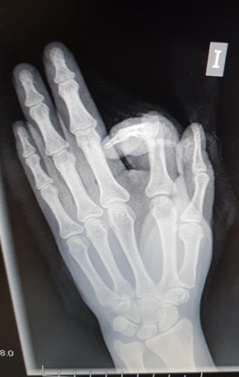 Verletzung des Zeigefingers mit einer Machete (Knochen und Strecksehne)