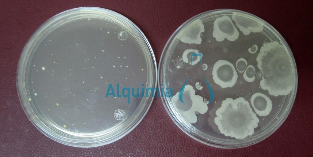 Bacterias Mesofílicas Aerobias en ACE.