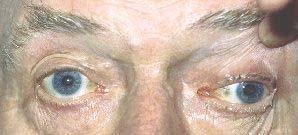 oculomotor nerve palsy