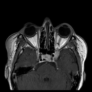 MRI Tolosa Hunt Syndrome