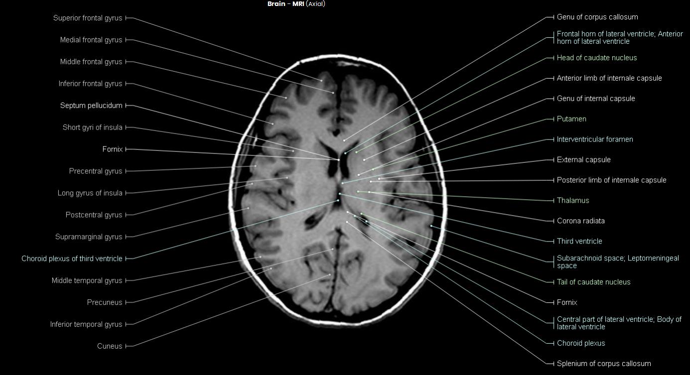 Brain MRI - NeurologyNeeds.com