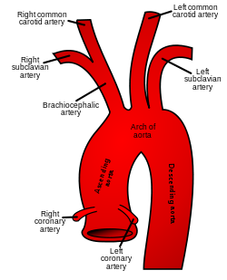 aortic arch and branches