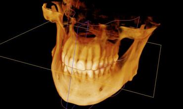 DVT-Aufnahme 3D-Großvolumen