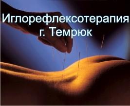 Иглотерапия, иглорефлексотерапия в Темрюке