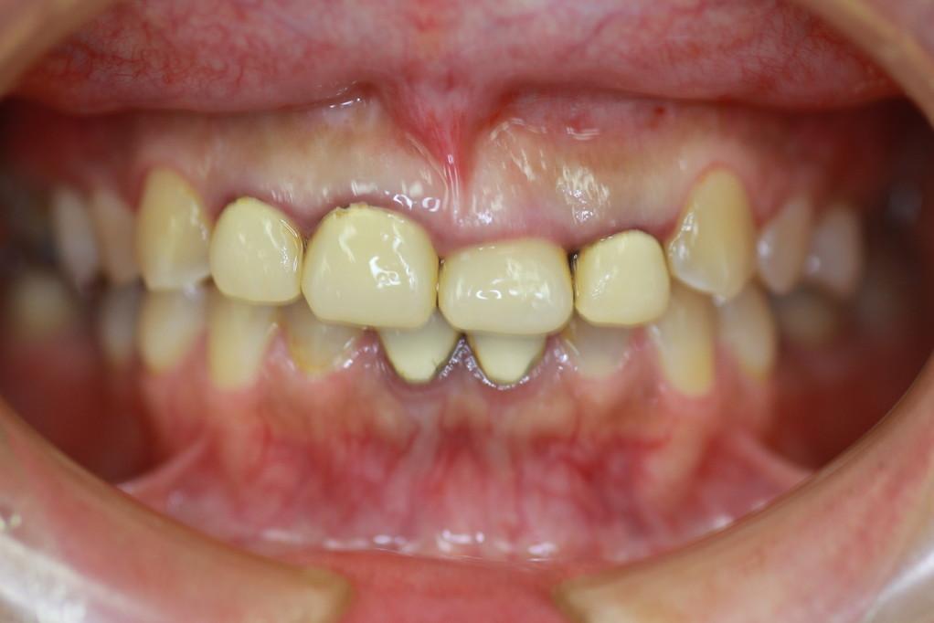 審美歯科と歯茎の位置 治療前