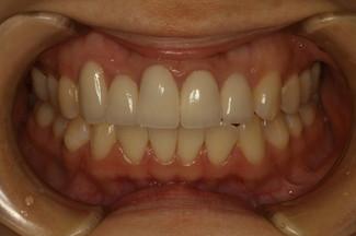 歯茎の退縮と長い差し歯