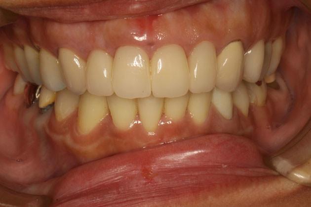 歯茎の位置を左右で揃える