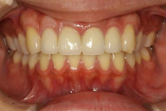 歯茎を整えた後で審美歯科治療を行います.