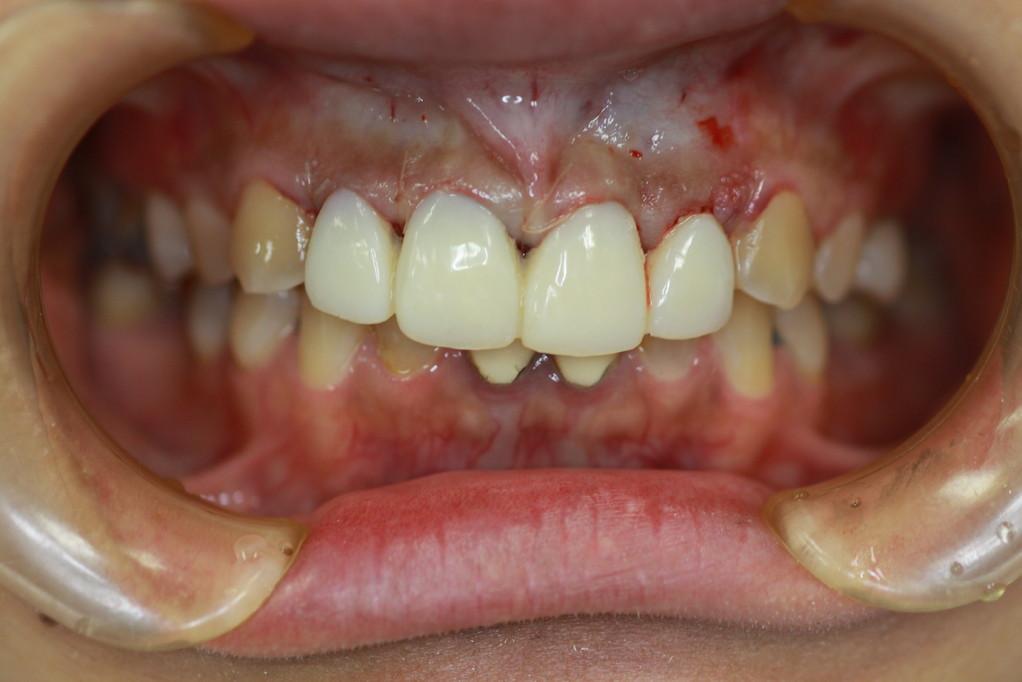 審美歯科と歯茎の位置 治療後