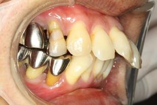 歯周病と仮歯