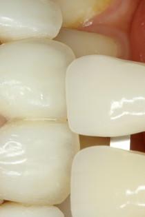 セラミックの歯の色