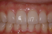 前歯の審美歯科
