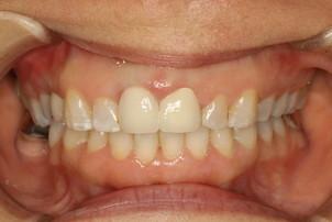 歯茎の黒ずみの審美歯科