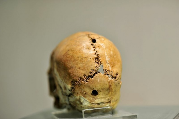 Intervento chirurgico cerebrale, Aşıklı Höyük (fonte: Arkeofili)